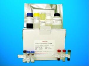 武氏盾螨染料法荧光定量PCR试剂盒