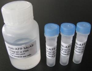 磷酸化腺苷单磷酸活化蛋白激酶β1抗体说明书产品图片