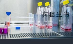 QGY-7703细胞:人肝癌细胞 产品图片