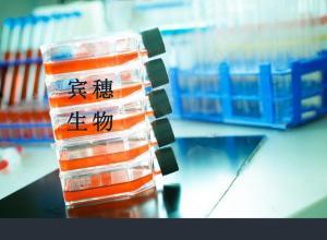 SNU-182细胞:人肝癌细胞 产品图片