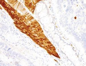 精氨酸酶-1(Arginase-1)抗体检测试剂盒