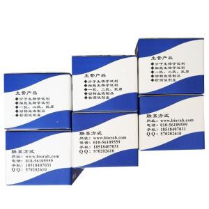 细胞膜流动性(fluidity)TMA-DPH荧光检测试剂盒产品图片