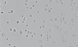 H22小鼠肝ai细胞