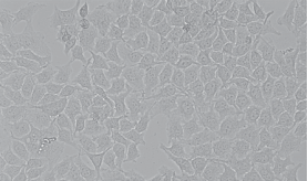 SMMC-7721人肝癌细胞