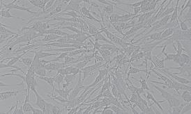 B16小鼠黑色素瘤细胞