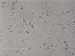 Rat Hippocampal Neurons大鼠海马神经元