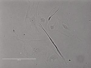 Rat Spinal Meninges Cells大鼠脊膜细胞